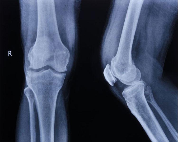 Woher kommen Knieschmerzen?