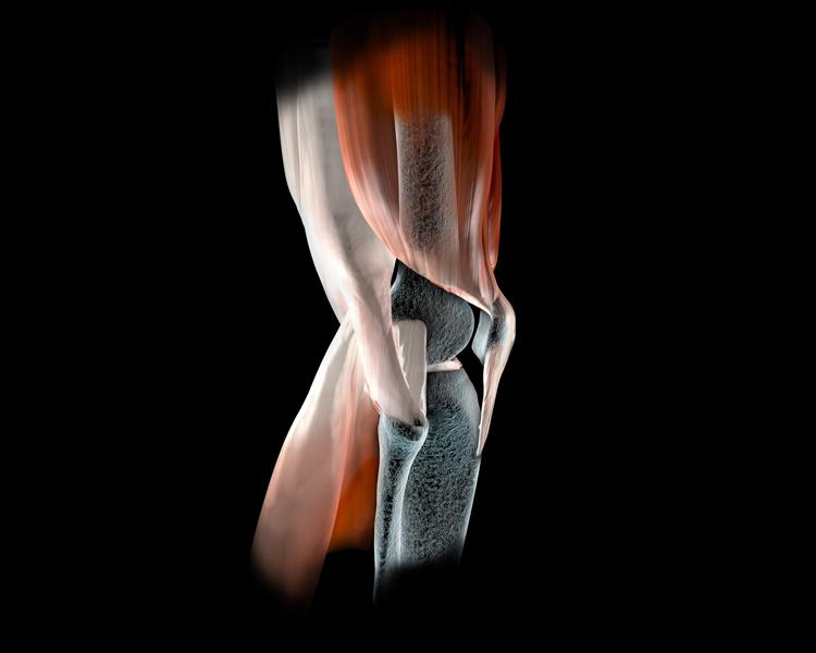 Knieverletzungen - Knochen