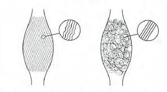 Abb. 7.24.3 Reaktion der Kollagenfaserarchitekturauf Belastungen. In der Faszie junger Menschen (links im Bild) sind die Kollagenfasern häufiger in Form eines klaren Scherengitters (bidirektional) angeordnet und zeigen unter dem Mikroskop eine ausgeprägte Wellung (Crimp). Im Gegensatz dazu ist die Faseranordnung in der Faszie älterer Menschen unregelmäßig und die einzelnen Fasern sind kaum gewellt. Wie in Tierstudien gezeigt wurde, kann eine geeignete Belastung zu einer Strukturänderung der Faszie mit vermehrter Faserwellung führen. Bewegungsmangel andererseits begünstigt die Ausbildung eines multidirektionalen (filzartigen) Fasernetzwerks mit verminderter Wellung.