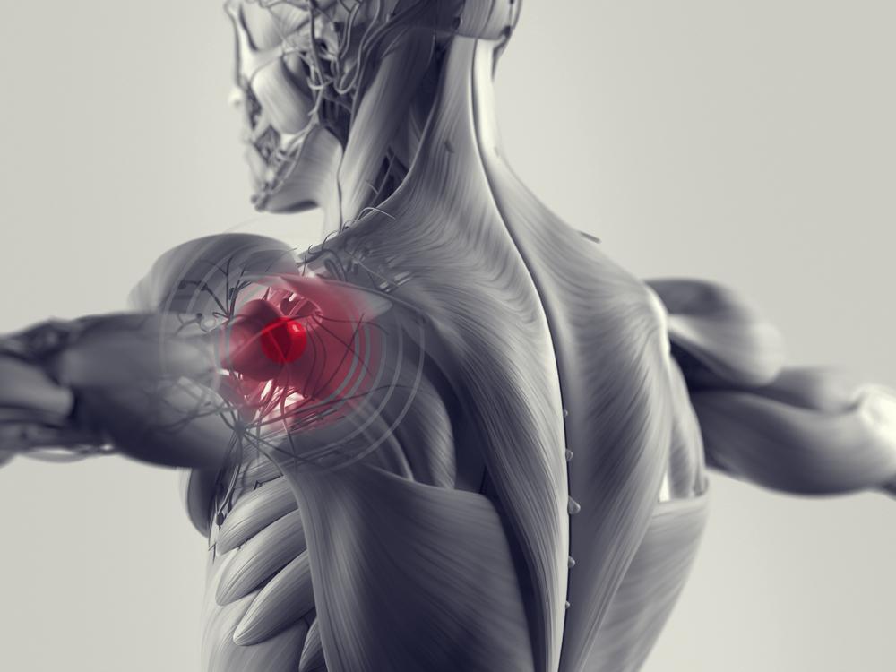 Tipps für gesunde Schultern – Teil 2 - Functional Training Magazin ...