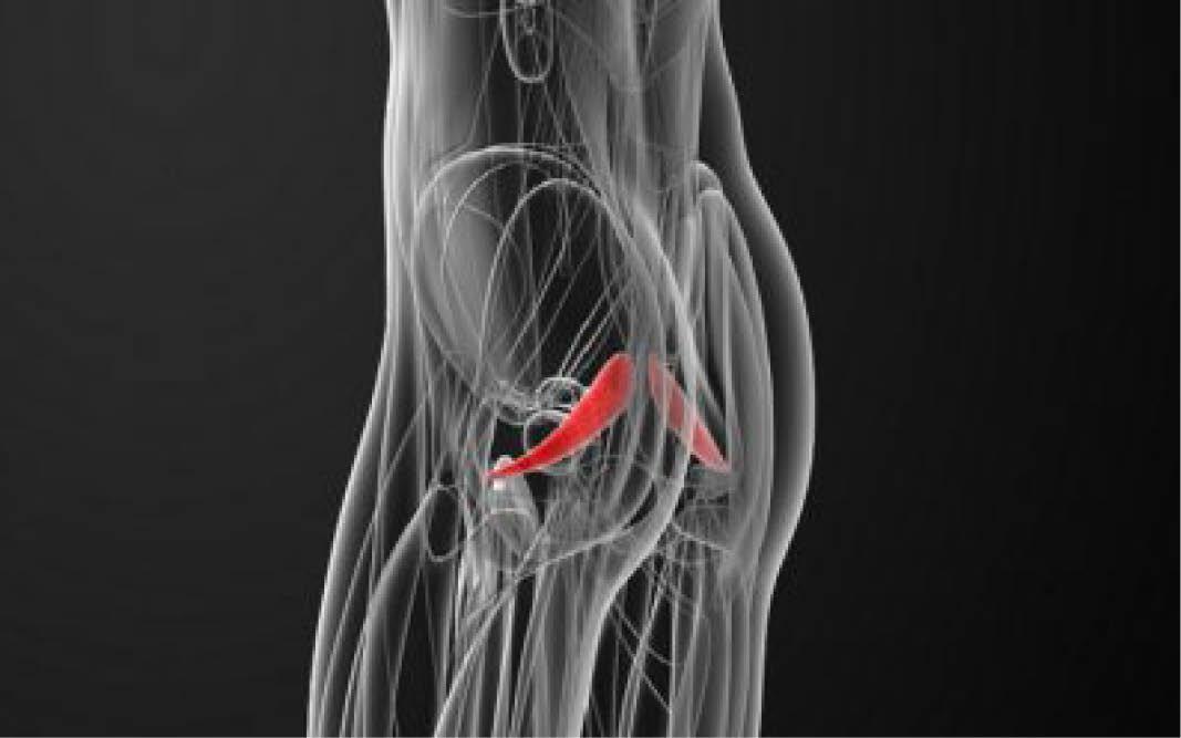 Muskelschmerzen im oberschenkel